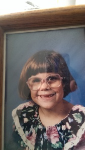 I lost my two front teeth before picture day